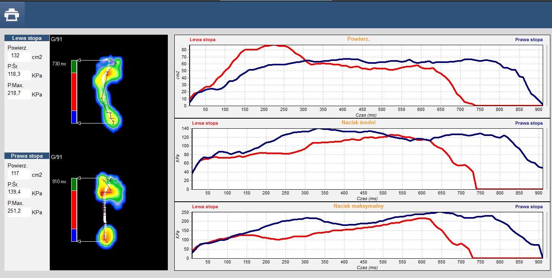 Badanie dynamiczne - wykresy