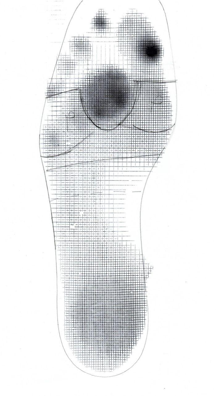 plantorgraf sidas - odbitka stopy