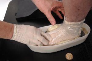 wkładki kespandujące - pobranie wycisku stopy